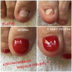 Best Nails - Körömkorrekció